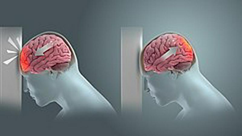 Brain Damage and Neuroplasticity Ch10